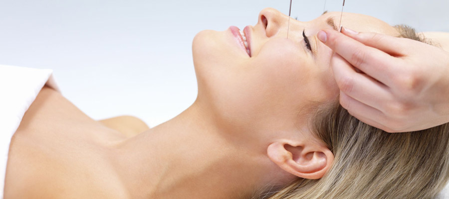 L'acupuncture,